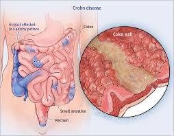 corhon's disease